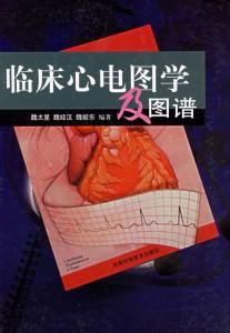 临床心电图学及图谱