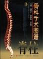 骨科手术图谱(脊柱)