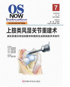 上肢类风湿关节重建术