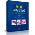 肺癌诊断与治疗(第2版)
